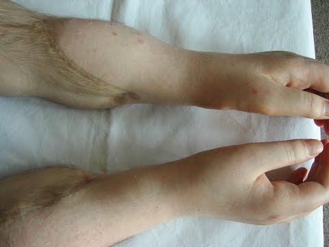 FACE & HAND Transplantation