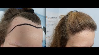 Video 1551 FU's. Hair Transplant by FUE Technique. Female forehead reduction. 1141/2013 MP3, 3GP, MP4, WEBM, AVI, FLV September 2018
