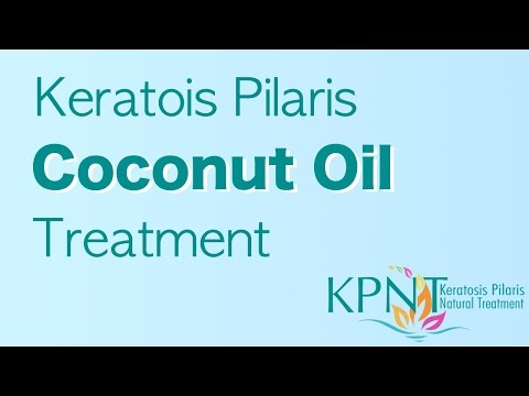 how to use coconut oil for keratosis pilaris