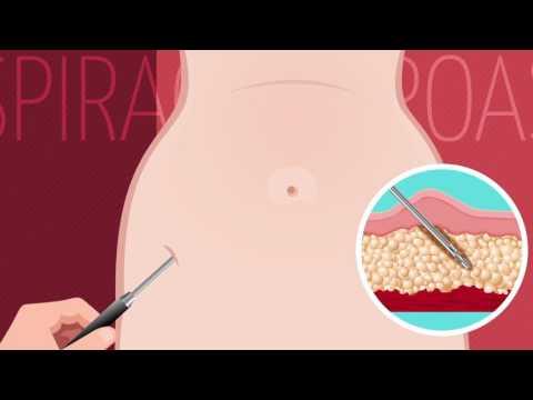 Lipoaspiração - Clínica Realize