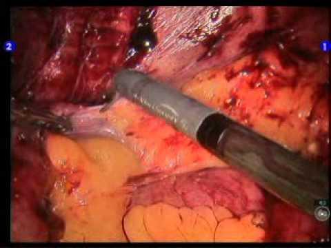 Robotic assisted lysis of small bowel adhesions