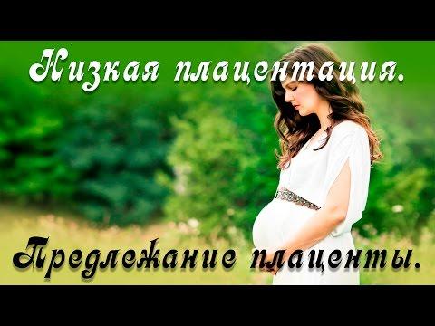 Низкая плацентация. Предлежание плаценты. Плацента при беременности.Дети,выживание вида,26 серия.