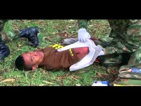amputacion - RECUERDE QUE: Las heridas causadas por minas antipersonal pueden ser definidas como las más complejas y dramáticas de todas las heridas de guerra. Son herida...