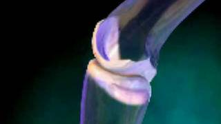 الالتهاب المفصلي الروماتويدي في اليد