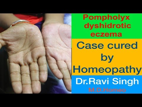 Pompholyx cured by Homeopathy