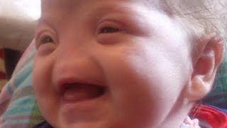 Inspirational: Baby Born With No Nose