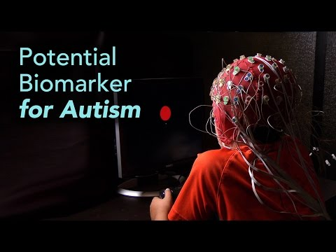 Science Talk: Brainwave Test Could Improve Autism Diagnosis and Classification