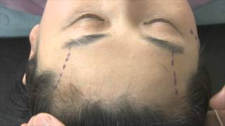 Video [Eng. Ver.] Korea plastic surgery Anti-Aging : Forehead-Brow Lift (2) MP3, 3GP, MP4, WEBM, AVI, FLV Juli 2018