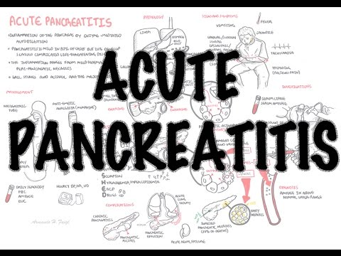Acute Pancreatitis - Overview (signs And Symptoms, Pathophysiology, Investigations, Treatment)