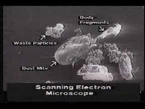 Informative video about Dust Mites