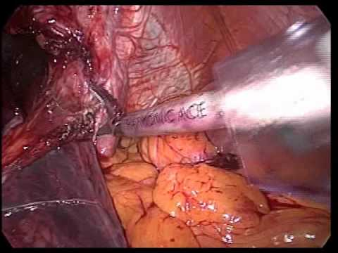Intrathoracic Stomach Surgery - Laparoscopy
