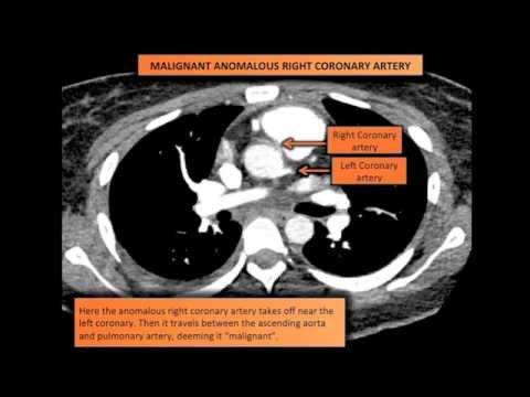 Malignant Anomalous Right Coronary Artery