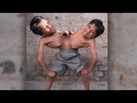 Hip - Conjoined Twins: Brothers Joined At The Hip Learn To Live In Harmony SUBSCRIBE: http://bit.ly/Oc61Hj CONJOINED twins Shivanath and Shivram Sahu have found a ...