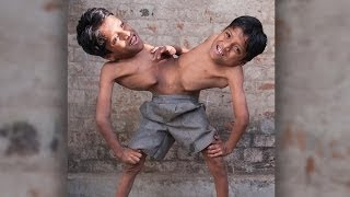 I'm Speechless After Watching This: Conjoined Twins Brothers Learn To Live In Harmony