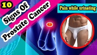 Video 7 Common Signs Of Prostate Cancer You Should Not Ignore MP3, 3GP, MP4, WEBM, AVI, FLV Januari 2019