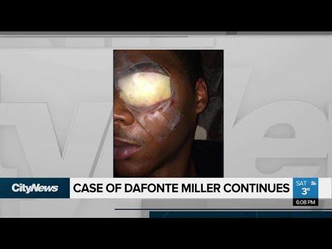 Miller testifies in assault trial over 3 days