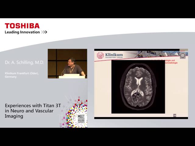 Experiences with Titan 3T in Neuro and Vascular Imaging