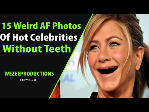 15 Weird Photos Of Hot Celebs Without Teeth