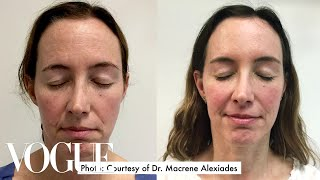 Video One Woman Gets 15 Cosmetic Procedures in 12 Months | Vogue MP3, 3GP, MP4, WEBM, AVI, FLV Desember 2018