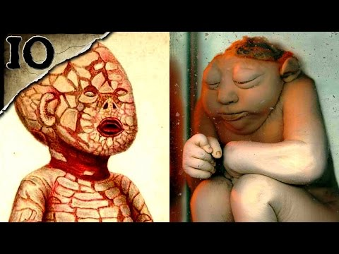 10 Horrible Birth Defects | TWISTED TENS #17