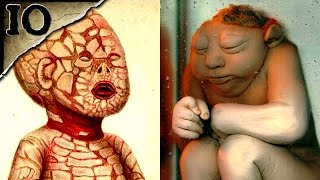 Video 10 Horrible Birth Defects | TWISTED TENS #17 MP3, 3GP, MP4, WEBM, AVI, FLV Desember 2018