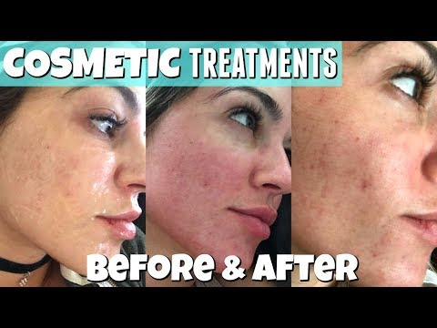 Cosmetic Treatment | COOLASER | Before & After