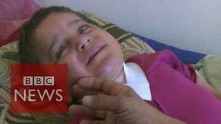 Disabled Yazidi Refugee Boy 'abandoned In Desert'