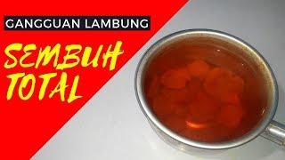 Download Video SAKIT ASAM LAMBUNG DAN MAAG KRONIS MAUPUN AKUT, SEMBUH TOTAL DENGAN RAMUAN INI || SEHAT TUBE MP3 3GP MP4