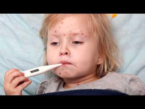 Захворювання - Обережно вітряна віспа