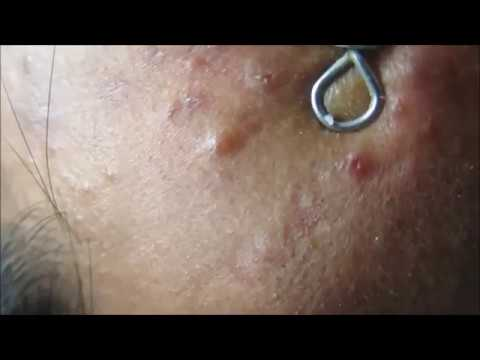 Black Heads On Chin & Face Extraction