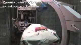 Operace zlomeniny pánve