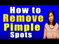 How to Remove Pimple Spots
