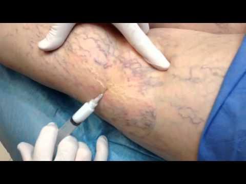 Esclerosis con espuma en variculas