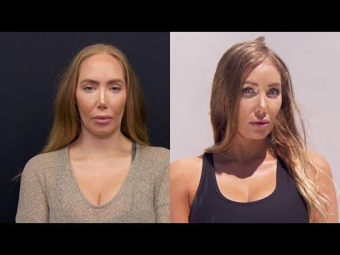 Woman Unhappy With Forehead Size Gets Reduction Surgery