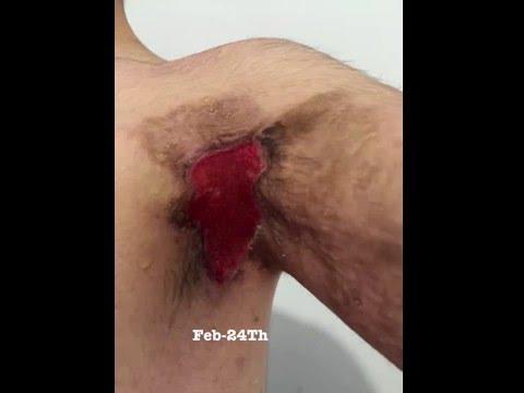 Hidradenitis suppurativa cyst drainage, Anakinra, kineret, armpit boil, armpit draining, cyst drain