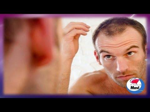 Tratamientos para la caida del cabello con romero