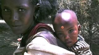 Operation Smile: Mekelle, Ethiopia May 2013