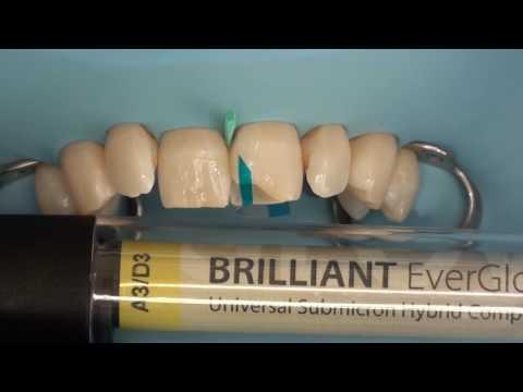 Прямая многослойная реставрация передних зубов
