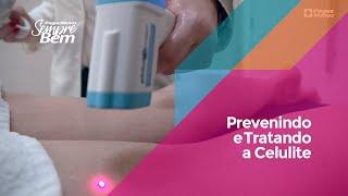 Prevenindo e Tratando a Celulite