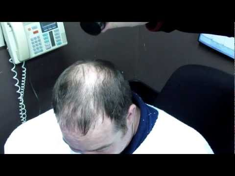 Caboki - Bieber In A Bottle hair loss remedy