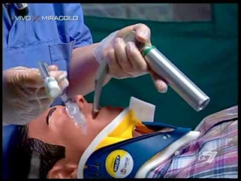 Intervento di tracheotomia in emergenza - Video da vedere e condividere