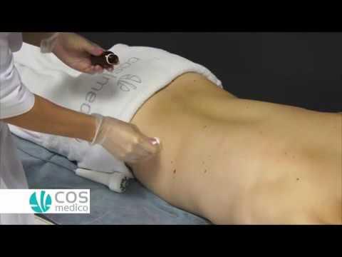 Ultrasound Liposuctie / IR / US