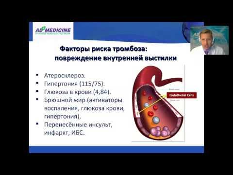 Тромбозы, тромбы, тромбообразование - профилактика и лечение