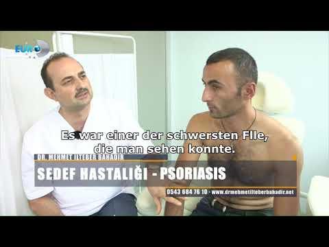 Dr. Ilteber Bahadir - İlyas Kıl - Deutsche Untertitel