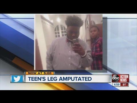 Teen's leg amputated because of football injury