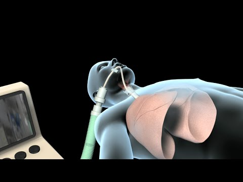 ventilation - View more AMAZING medical animations at http://www.nucleuslibrary.com ! Free iPad app on the heart! http://www.ihearttouch.com You may receive endotracheal i...