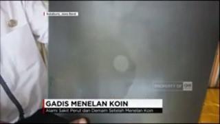Video Gadis Menelan Koin, 4 Tahun Menempel di Dinding Perut MP3, 3GP, MP4, WEBM, AVI, FLV Oktober 2018