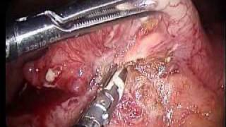 عملية الزائدة الدودية بالمنظار/Laparoscopic Appendicectomy