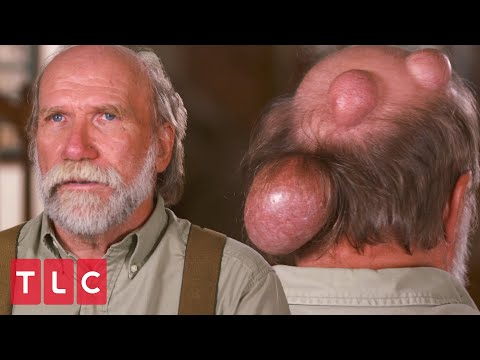 Dennis Has Giant Growths on His Head | Dr. Pimple Popper