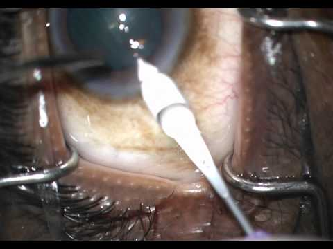 fellow case 4 trabectome phaco part 2 good opening of Schlemm's canal then soft lens stop and chop